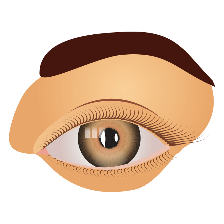 Glaukooma