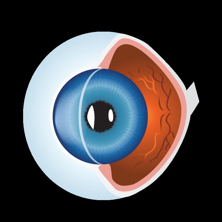 Silmänpohjan ikärappeuma