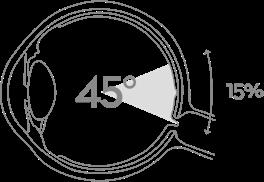 Silmänpohjakuvaus 45