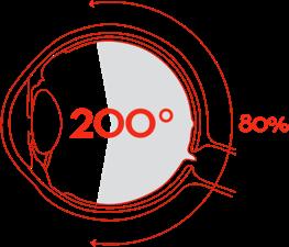 Silmänpohjakuvaus 200