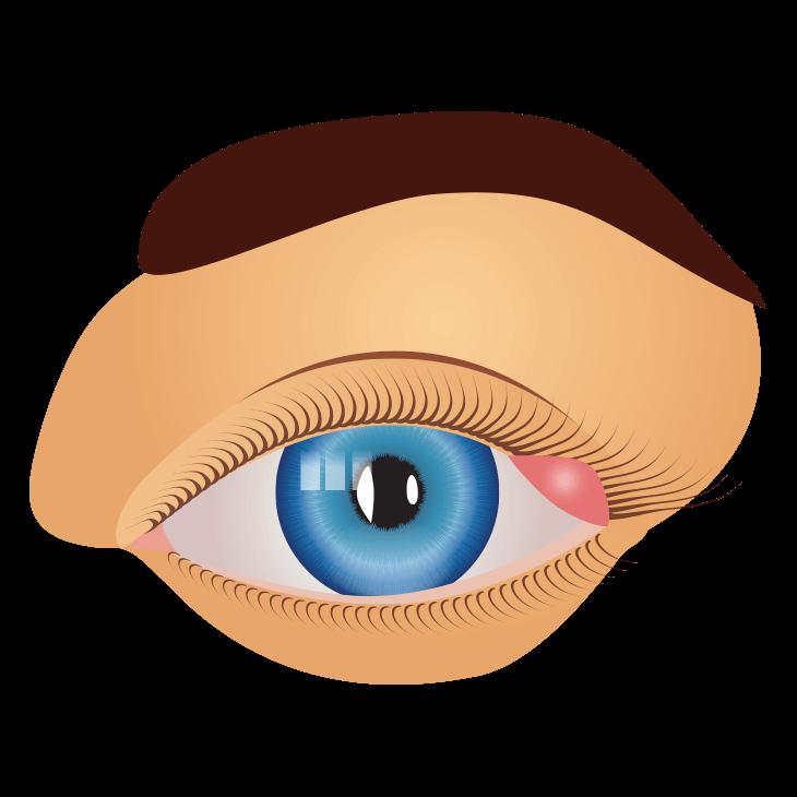 Silmäluomen Tulehdus