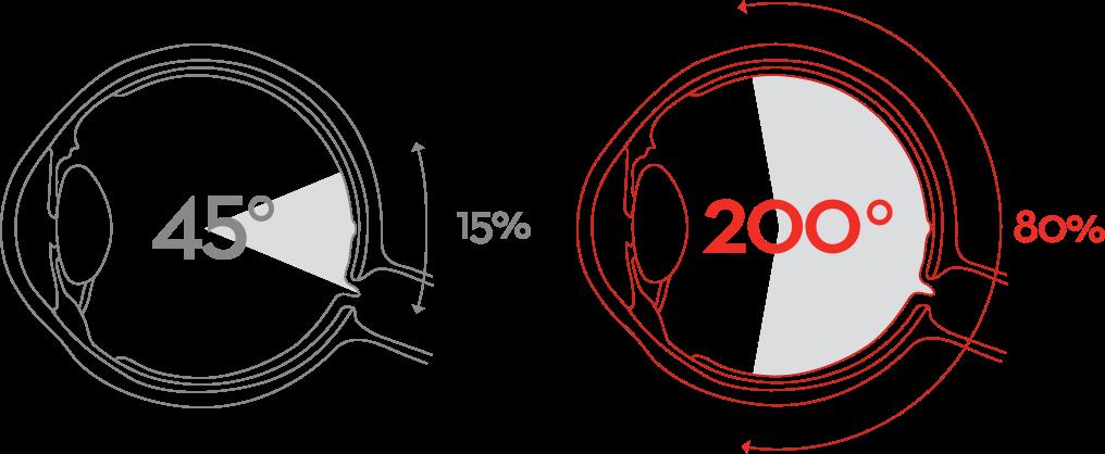 Optikon näöntutkimus 0€ silmänpohjakuvauksen yhteydessä